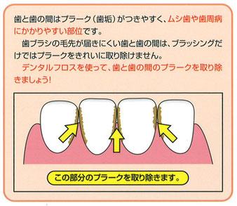 八戸市 歯周病 糖尿病 ホワイトニング