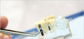 Implantate so fest wie eigene Zähne