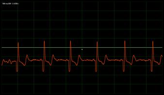 EKG-Kurve aufgezeichnet über die Soundkarte eines PC