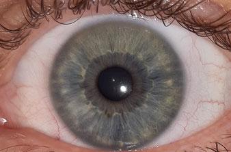Neurogen-sensible Iris lymphatische Konstitution