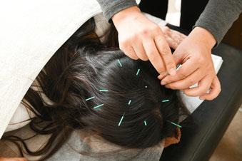 育毛鍼灸(女性の髪のお悩みを解消)