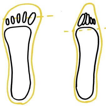 hallux valgus, voetklachten, minimalistische schoenen