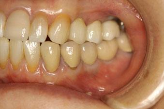 歯茎が薄い