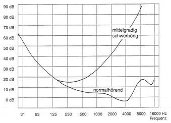 Diagramm Hörschwellenkurven guthörend und mittelgradig schwerhörend
