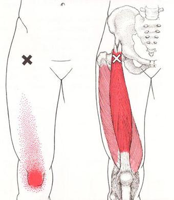 膝のトリガーポイント