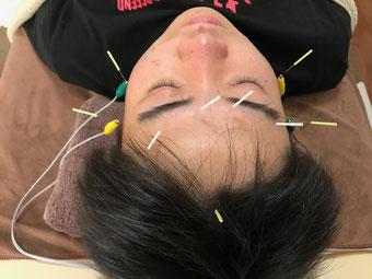小牧 鍼灸 鍼治療 はりきゅう 腰痛 肩こり 自律神経 眼精疲労 美容鍼