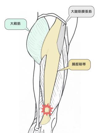 腸脛靭帯摩擦症候群