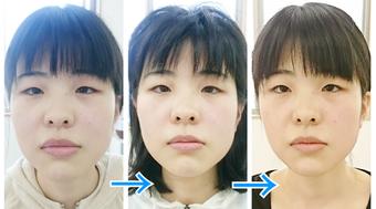 田中療術院 小顔ストレッチ 小顔矯正