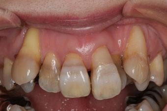 八重歯の歯茎が下がってしまった方の矯正治療の注意