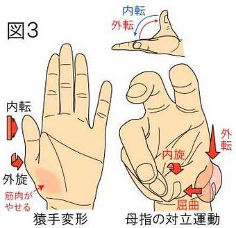 母指対立運動・外転・内転・猿手