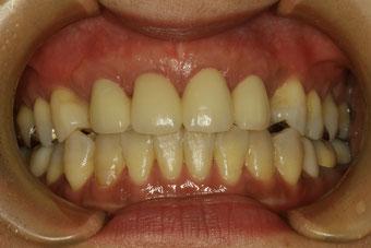 歯茎の退縮と歯の変色したケース