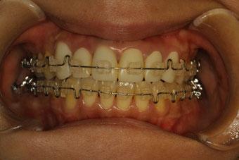 左右の長さを揃える審美歯科治療