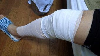 右膝前十時靭帯損傷2013