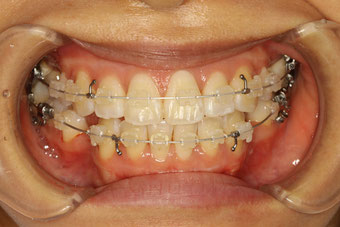 歯列矯正のモニター方の装置