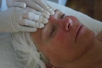 Behandlungen bei Couperose, Rosacea und Teleangiektasien