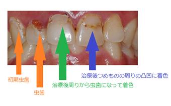 歯の黄ばみ着色の治療