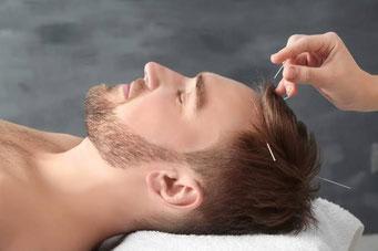 acupuntura, medicina tradicional china, moxibustion, ventosas