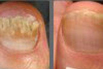 Schimmelnagel Infectie Pinpointe Footlaser Chantilly