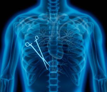 Hilfe bei Ärztepfusch und Arzthaftung durch Arzt, Zahnarzt oder Krankenhaus.