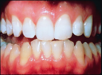 Zahnfarbe a3 bilder