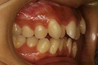 奥歯が噛んでも前歯が噛まない噛み合わせをオープンバイトと言っています。