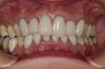 歯並びの悪い差し歯の位置をそろえることができます。