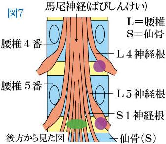 神経根の圧迫・外側型