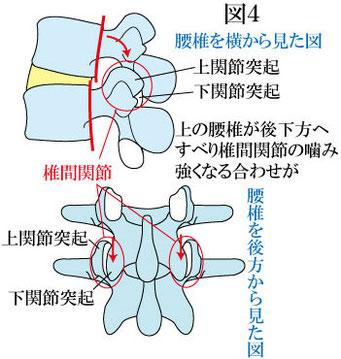 腰椎後方すべりと椎間関節