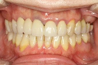 審美歯科の失敗 治療前