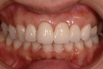 前歯のセラミックのブリッジ