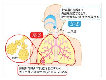 肺炎と風邪の違い