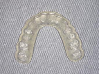 登戸・向ヶ丘遊園にあるカワシマ歯科医院 顎関節症