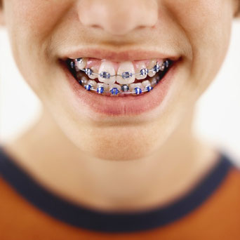 À OSTEOPATHE LYON CENTRE, Francis NYOCK, ostéopathe D.O. ( à Lyon et à Albigny sur Sâone) vous accompagne dans le traitement orthodontique de votre enfant