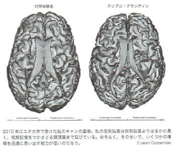 右がテンプル・グランディン先生の画像