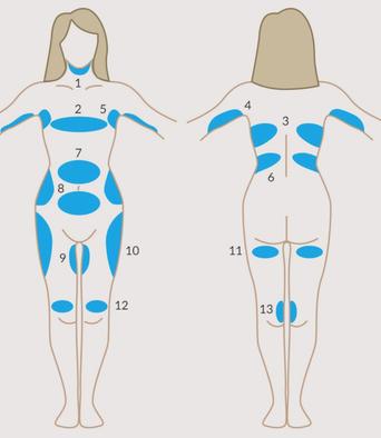 Cryolipolyse médicale arcachon bordeaux , La teste de Buch