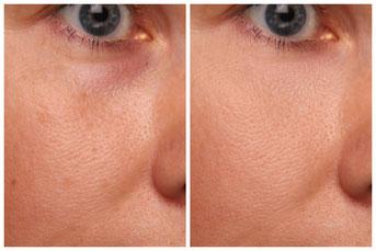 Сохранить естественную текстуру кожи