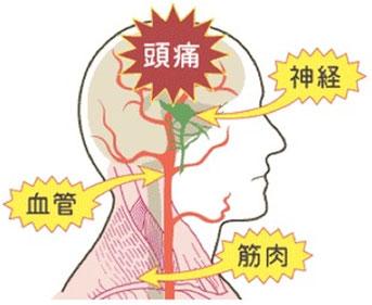 頭痛の原因は、筋肉の硬直による血管と神経の圧迫です。