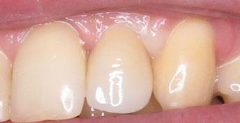 Der neue Zahn  auf dem Keramikimplantat