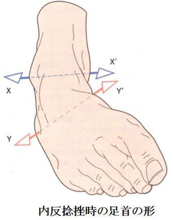 内反捻挫時の足首の形
