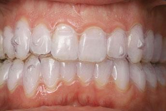 Bild: Zahnspange, Hamburg, schiefe Zähne, Zahnkorrektur
