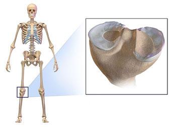 半月板 痛み 治療 リハビリ