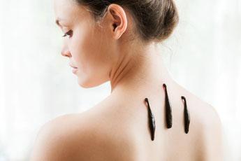 Blutegeltherapie, Frau mit Blutegel am oberen Rücken