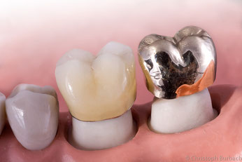 Zahnkronen aus Gold und Keramik