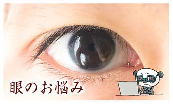 眼・目の症状を改善する漢方薬