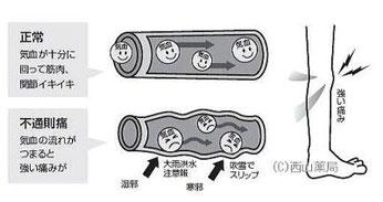 関節や筋肉の痛みに関わる血管のイメージイラスト(by新潟市の漢方薬専門店「西山薬局」)