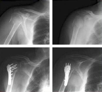 Abbildung: Versorgungsbeispiel einer Oberarmkopffraktur durch Plattenosteosynthese