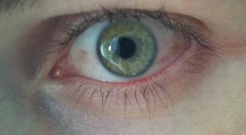 Meibomdrüsen-Störung, Trockene Augen/Sicca Syndrom