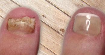 faux ongle paris