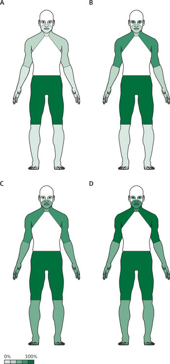 distribution of muscle weakness in Lambert Eaton syndrome