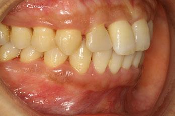 歯茎が引き締まった状態